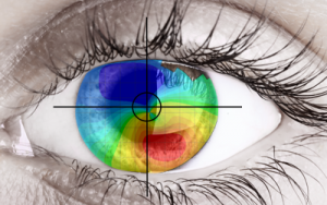 Laserfit dramatically improves night vision in Keratoconus