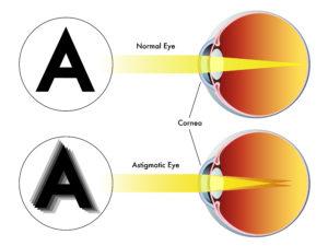 astigmatism correction, causes, symptoms, and diagnosis, Cephalic Vein