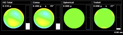 Combined HOA for Laserfit Lens with ordinary optics