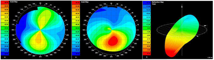 normal vs Keratoconus cornea scan